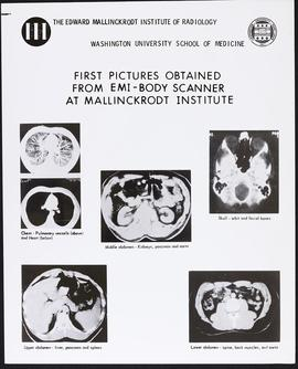 First pictures obtained from the EMI-body scanner at Mallinckrodt Institute.