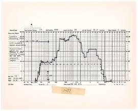 Graph of functional gain analysis of the London Dome hearing device, circa 1984.