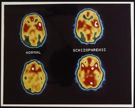 Brain scans of normal and schizophrenic patients.