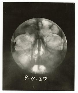 X-ray of a patient.