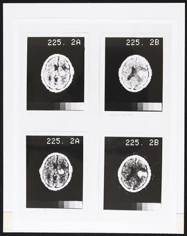 Brain tissue scans.