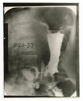 X-ray of a patient with carcinoma of the stomach.