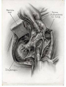 Diaphragmatic Hernia drawing by F.C. Kelly.