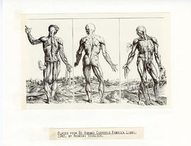 "Three engravings from ""De Humani Corporis Fabrica Libri,"" by Andreas Vesalius depicting..."