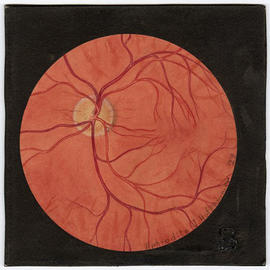 "Aphrodite J. Hofsommer drawing of an eye, for the textbook publication ""The Diagnosis and Tr..."
