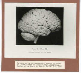 Lateral surface of the brain.