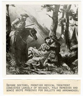 Artist's rendering of a frontier doctor tending to a patient with whiskey.